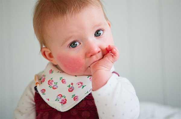 den femte barnesykdommen parvovirus B19